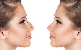 جراحی بینی مدرن