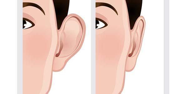 جراحی زیبایی گوش و عوارض آن