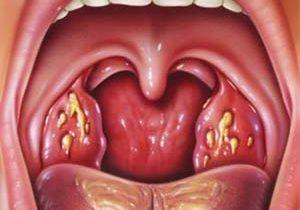 التهاب و عفونت حلق