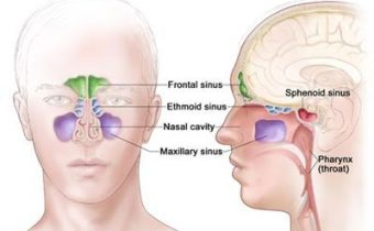 بیماری سینوسی چیست؟