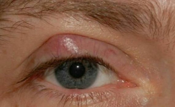 بلفاریت یا التهاب لبه پلک های چشم