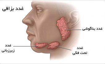 تومور های غدد بزاقی