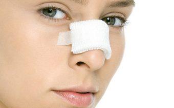 حقایق جراحی بینی