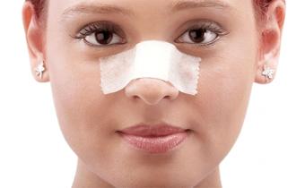 چند ترفند جراحی زیبای بینی