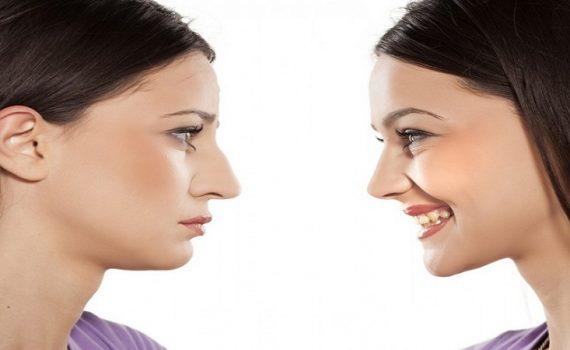 چه بینی هایی نیاز به عمل جراحی دارد