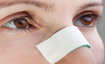 شست و شوی بینی بعد از رینوپلاستی
