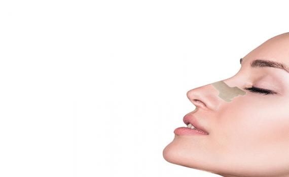 چسب زدن بینی بعد از رینوپلاستی