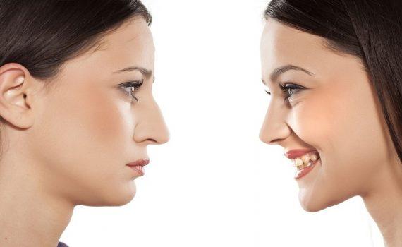 رابطه جراحی زیبایی بینی با اعتماد به نفس