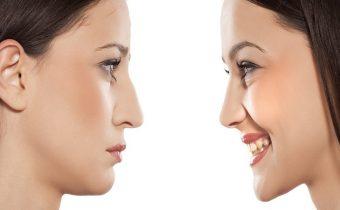 سن مناسب جراحی بینی عقابی