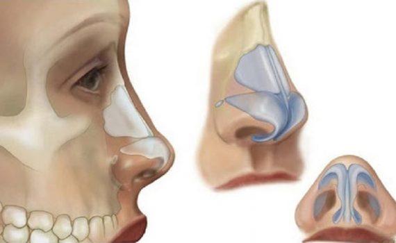 شکل دادن به ساختارهای بینی