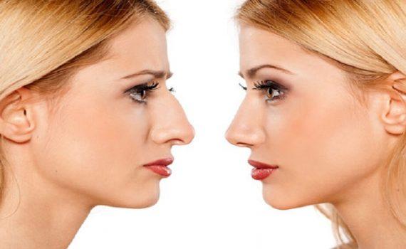 سوهان کشیدن بینی بعد از عمل