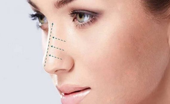 عوارض جراحی بسته بینی