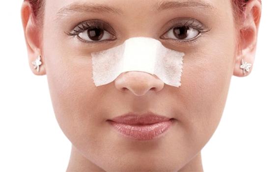 چند ترفند برای جراحی بینی