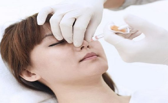 تزریق ژل گونه بعد از عمل بینی