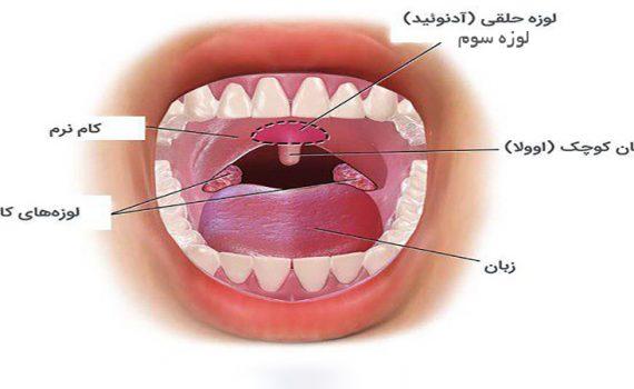 جراح بینی اصفهان | عمل جراحی لوزه سوم و عوارض آن