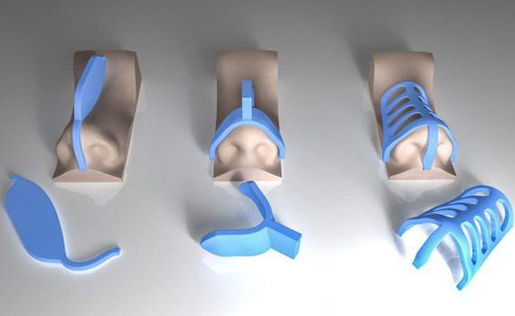 قالب کنترلی در جراحی بینی