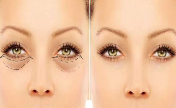 آناتومی صورت و چشمها در نژاد شرقی